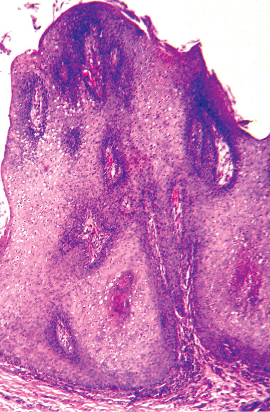 condilom bushke levenshtein analogi papiloma